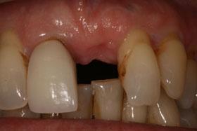 Implant-020b