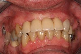Implant-036b